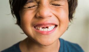 encinitas child smiling with missing teeth