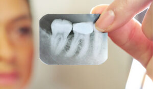 x-ray of a tooth with a needed root canal at Zen Dental
