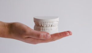 encinitas dentist holding a mold of teeth